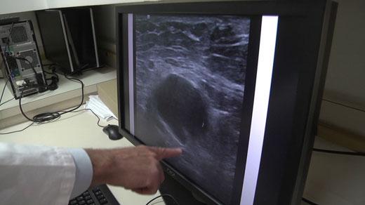 at UVA Medical Center