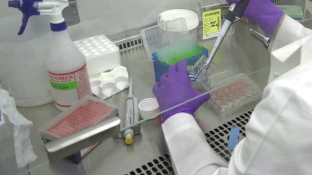 Research at the UVA School of Medicine (FILE IMAGE)